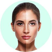 Skin lifting & tightening