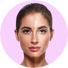 Spot & Scar treatments
