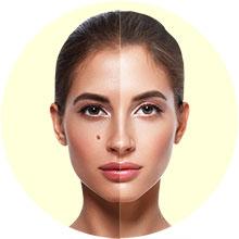 Mole & skin tag removal